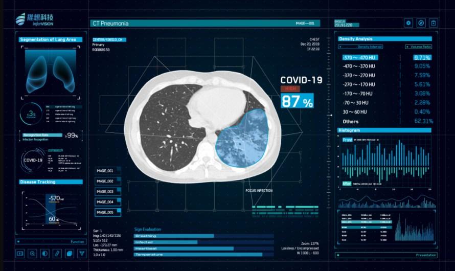 KI hilft bei der Diagnose von Covid-19 auf CT-Bildern