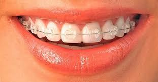Kodėl daugelis renkasi tiesinti dantis breketais?