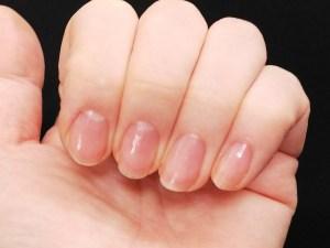 ネイルリペアセラムを塗布した自爪