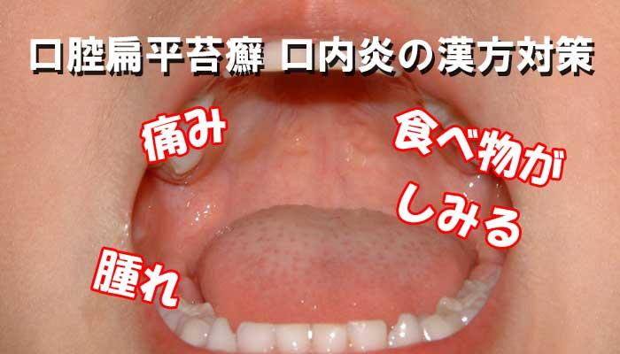口腔扁平苔癬の症状のイメージ画像