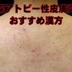 アトピー性皮膚炎で乾燥して痒い写真