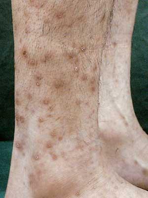 結節性痒疹の症状画像