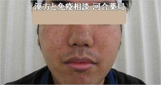 男性ニキビ治療前治癒写真