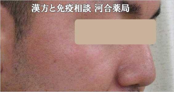 男性ニキビとブラックヘッド治癒経過写真2か月後