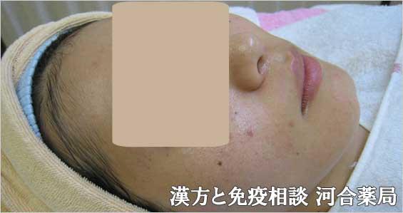 ニキビが治癒した女性の写真2