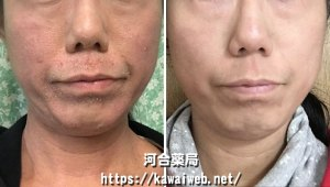 アトピー性皮膚炎が改善した相談例写真