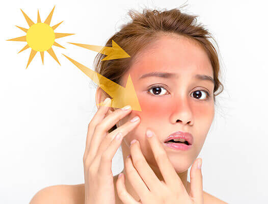 protectie-solara