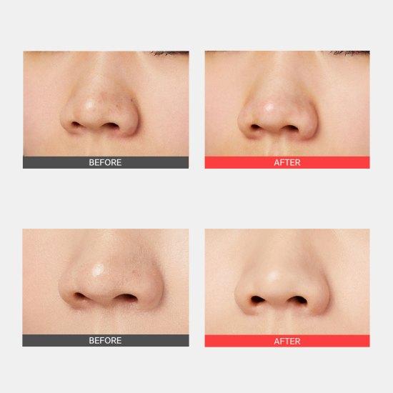 Ingeniosul kit în 3 etape de la Cosrx îndepărtează ușor și eficient punctele negre și celulele moarte de pe nas, pentru a dezvălui o pielea netedă cu pori vizibil micșorați.