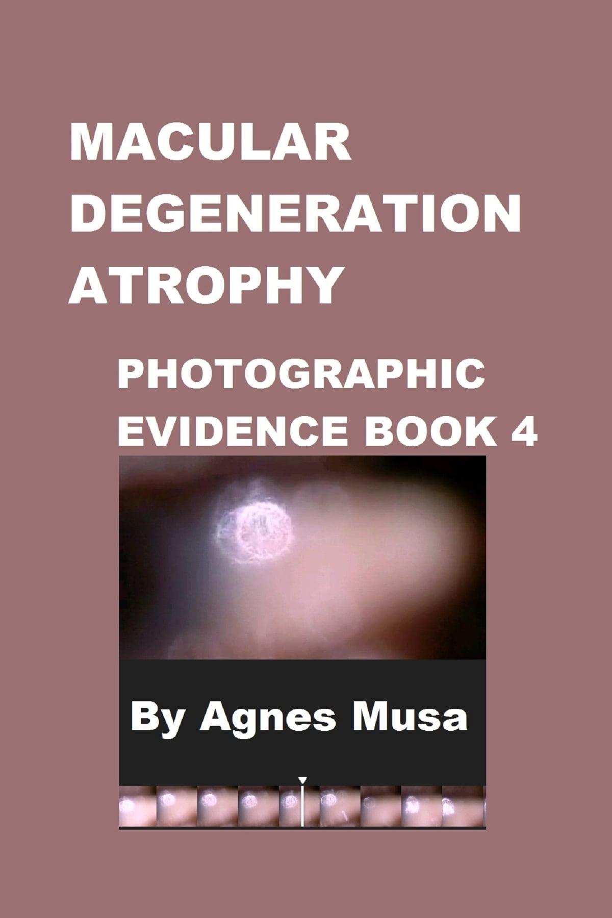 Macular Degeneration Atrophy, Photographic Evidence Book 4 eBook by Agnes Musa - 9781005227364 | Rakuten Kobo Canada