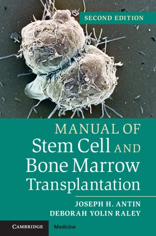 Manual Of Stem Cell And Bone Marrow Transplantation Ebook