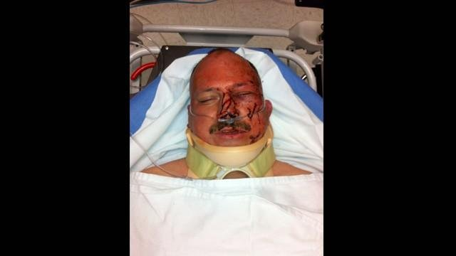 Officer Donald Hubbard in hospital