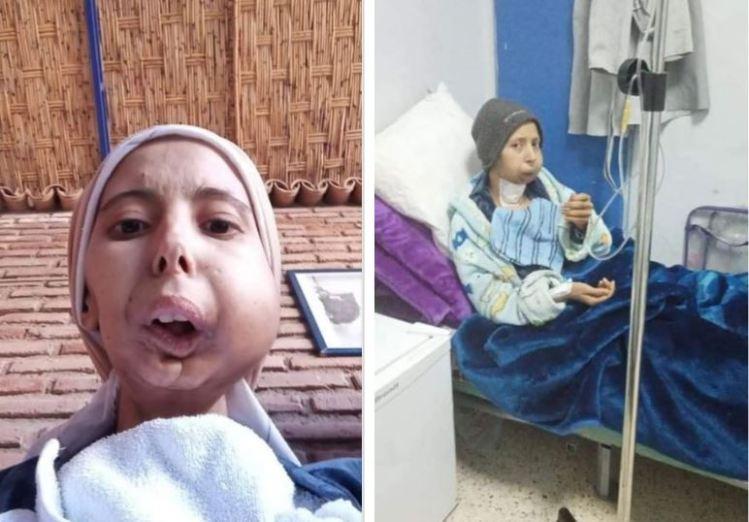 نداء إنساني لمساعدة مريضة على مصاريف حصص العلاج الكيميائي بمراكش