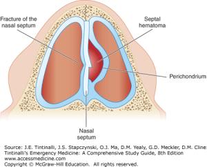 septum-hematoom-schematisch