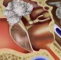 cholesteatoom schematisch