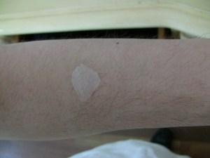 moist egg membrane on skin
