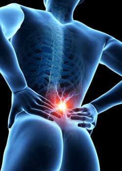 auto-accident-lower-back-pain
