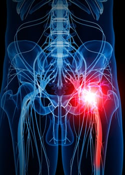 radiatting-nerve-pain-sciatica