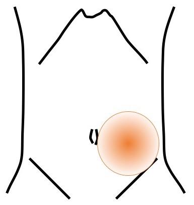 腹部 女性 左下 痛み