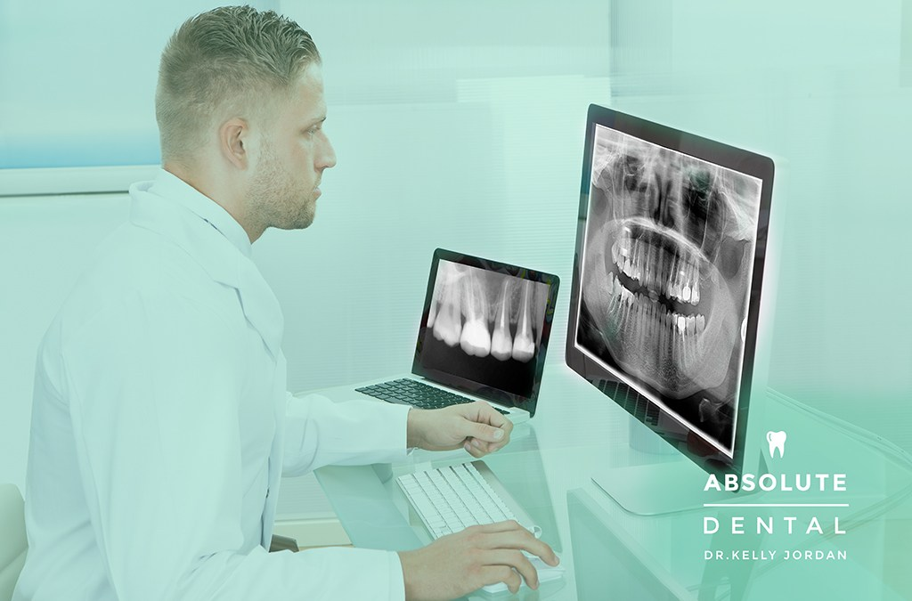 X-rays: A Necessity For Your Oral Health