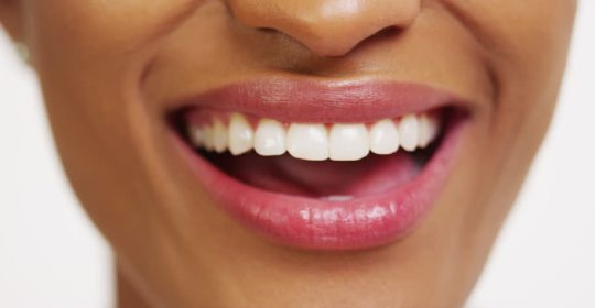 Three Proven Tips To Keep Teeth White