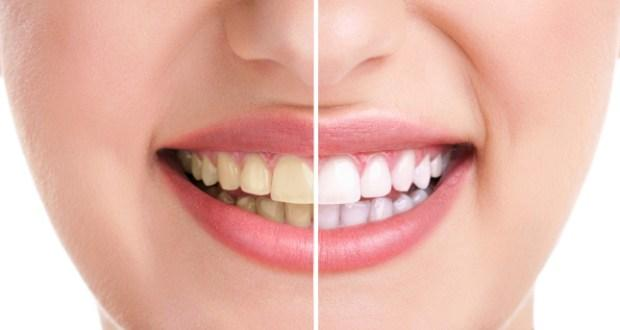 Top Tips On How To Whiten Yellow Teeth