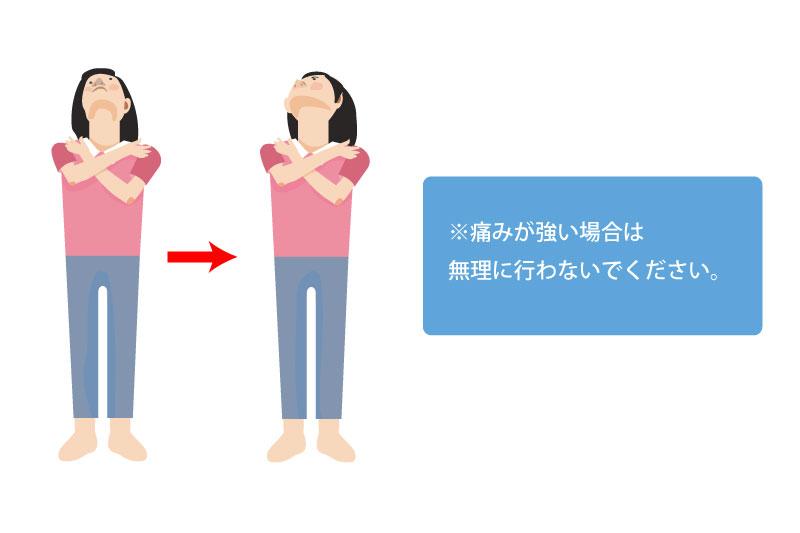 胸鎖乳突筋ストレッチ