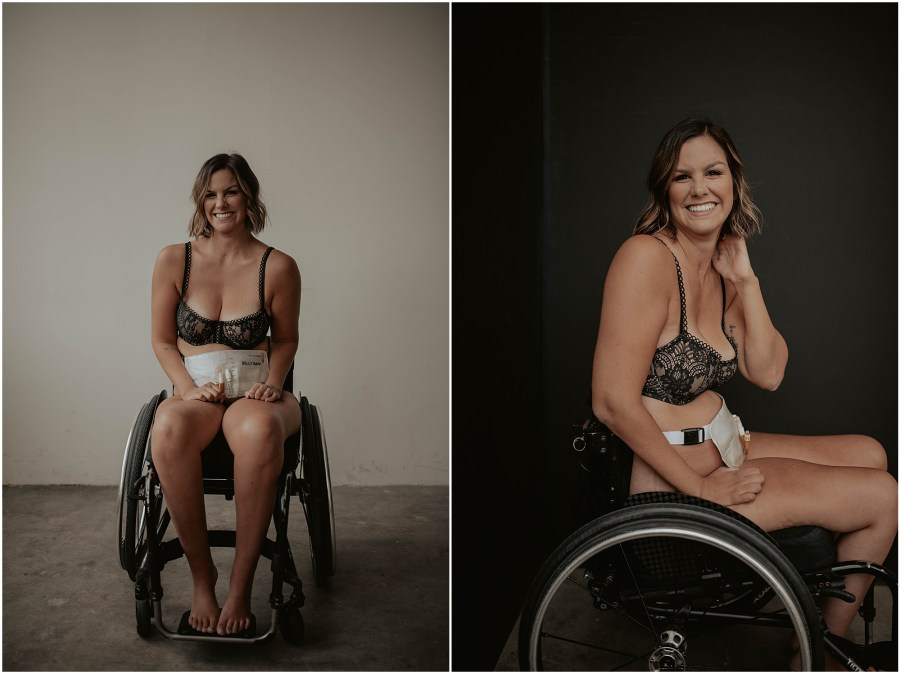 Paralyzed-Boudoir-Project, Paralyzed-Photos, Paralyzed-Photography-Project, Paralyzed-Boudoir-Session, Wheelchair-Boudoir-Photos, seattle, seattle-boudoir, seattle-boudoir-photographer, paralyzed-boudoir-photos, paralyzed-boudoir, paralyzed, boudoir-photography, boudoir-inspiration, female-empowerment, body-positive-project, impossible-boudoir-project, Empowered, boudoir-project, body-love-boudoir, Wheelchair, Wheelchair-Boudoir, Belly-Bag-Boudoir, Belly-Bag,