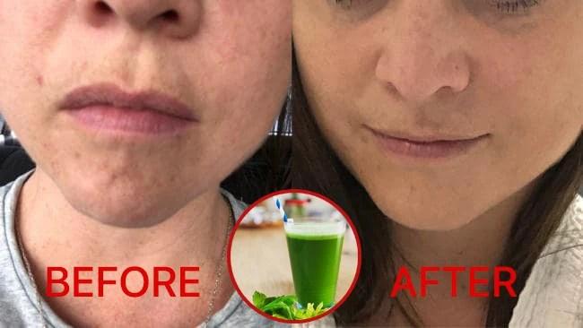 Ngắm kết quả sau khi uống nước ép cần tây từ các cô gái trên thế giới, làn da thay đổi nhiều đến mức khó tin - Ảnh 5.