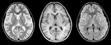 MRI 脳画像