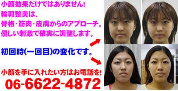 小顔効果だけではありません!一回目の変化です。