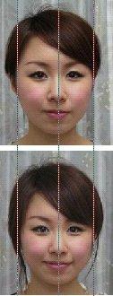 小顔矯正モデル6
