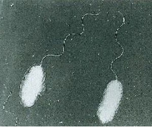 腸炎ビブリオ