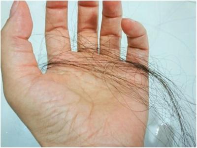 副作用による脱毛