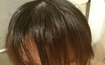 脂っぽい髪