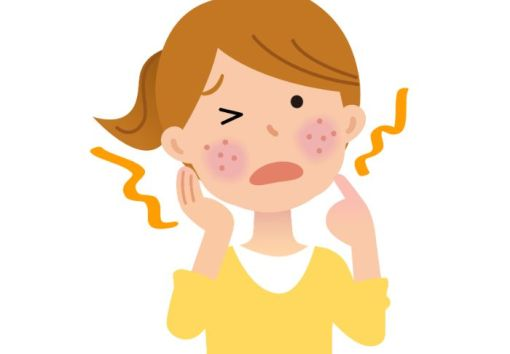 明太子を食べる際に気をつけるべき成分やアレルギー