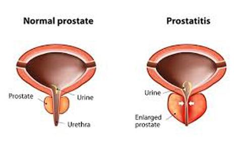 prostatitis rectal pain reddit