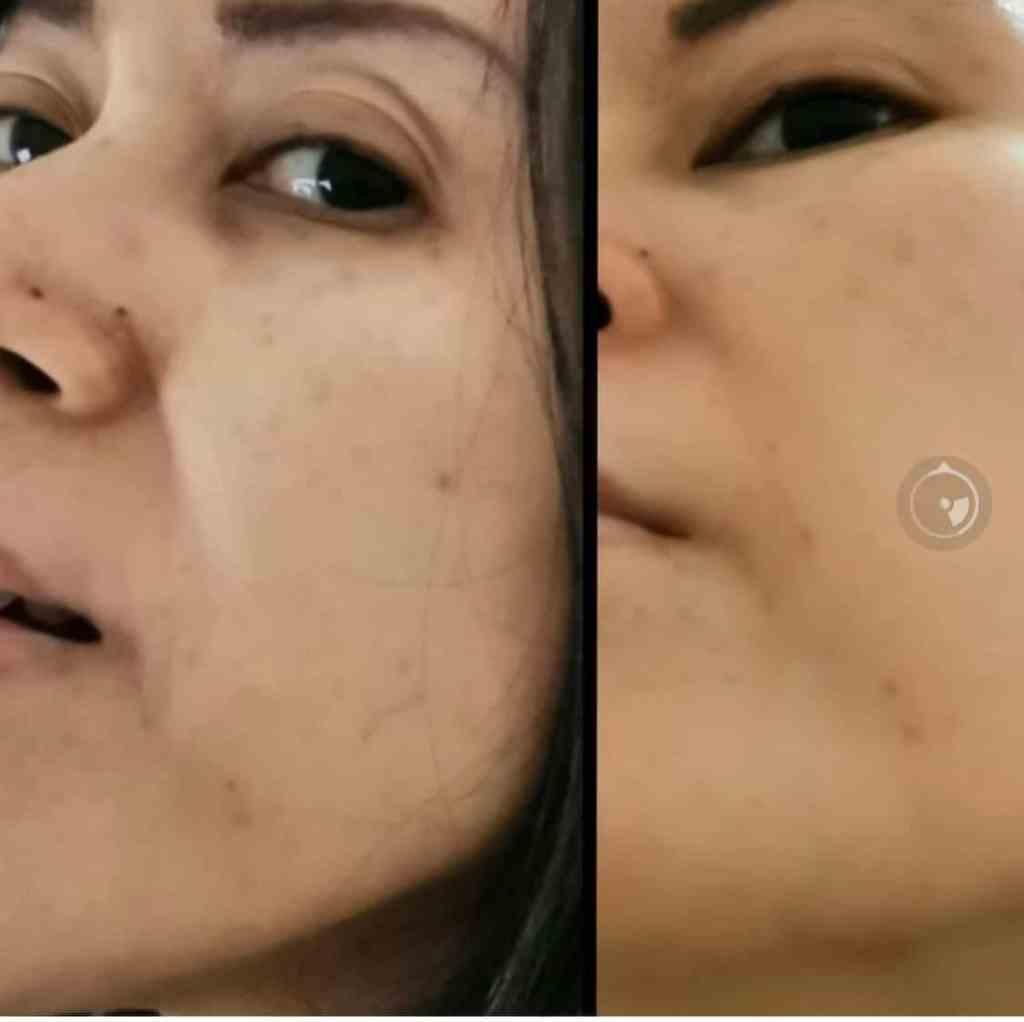Perawatan untuk flek wajah