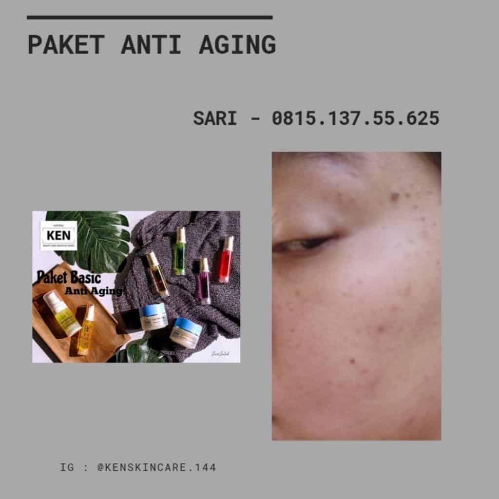 Skin tag tanpa couter 1