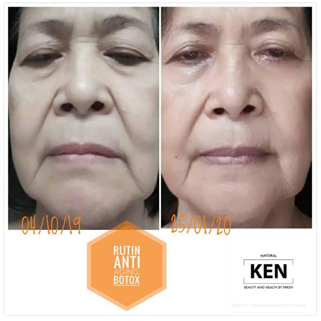 Perawatan wajah untuk usia 70 tahun