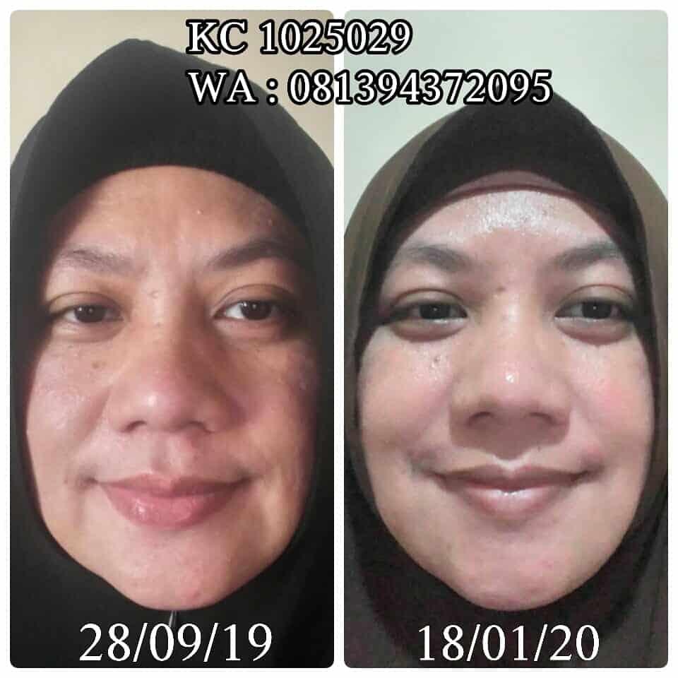 Transformasi kulit cantikku