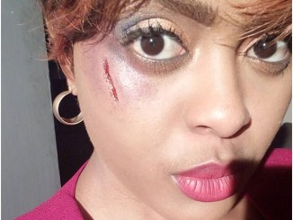 AVRILS life crumbles as she is beaten and bruised in the face. See her photo