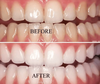 How to Whiten Teeth Naturally with Baking Soda, Hydrogen Peroxide, Coconut Oil..