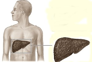 Signs and Symptoms of Liver Disease to Watch Out for