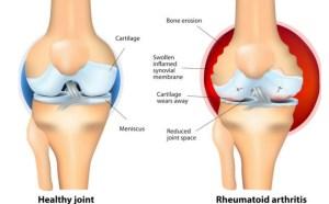 Arthritis treatment in Kenya