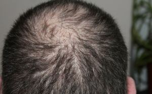 Hair loss treatment in Kenya and where to buy hair growth products