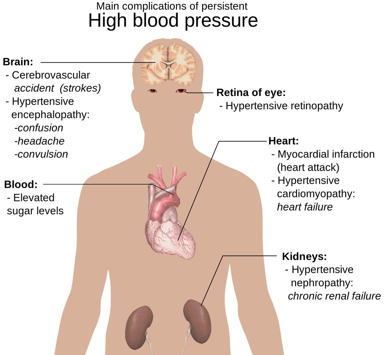 High Blood pressure treatment and Home Remedies in Kenya