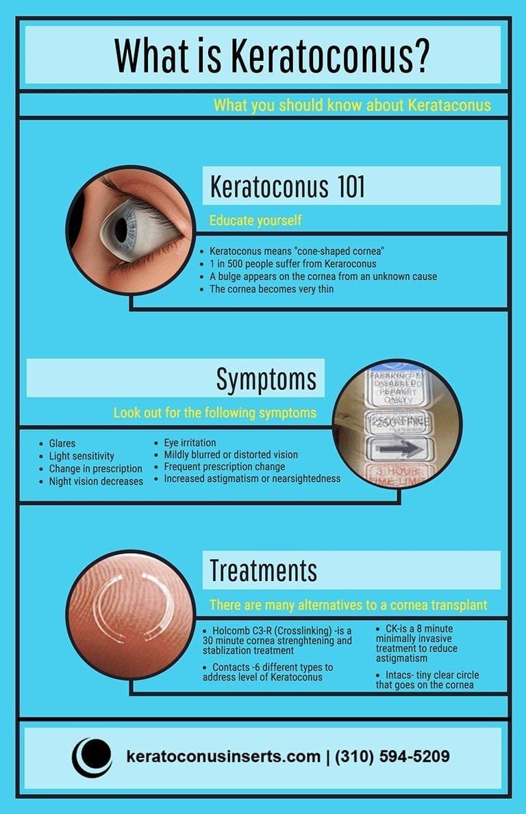 Keratoconus infographic