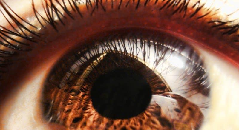 KC eye