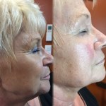 kerato-bordeaux-probleme-de-peau-vieillissement-de-la-peau-sur-visage