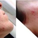 kerato-bordeaux-probleme-de-peau-boutons-sur-visage